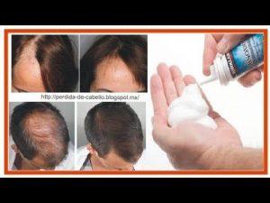 El mejor listado de caida de pelo minoxidil para comprar