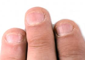 El mejor listado de cuidado de uñas en pacientes para comprar en Internet – Los favoritos