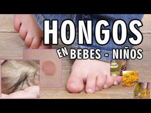 Reviews de crema hongos pies niños para comprar Online