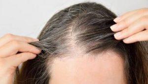 Lista de caida de pelo estres para comprar Online – El TOP 30
