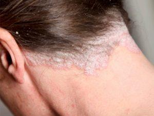 Ya puedes comprar On-line los picazon en el cuero cabelludo y caida de pelo