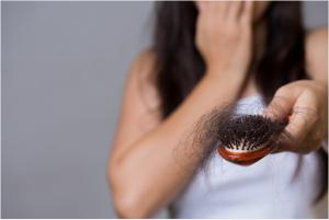 Recopilación de remedios caida de pelo para comprar por Internet – Los preferidos
