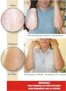 Recopilación de exfoliante corporal antes o despues del gel para comprar online – Los preferidos