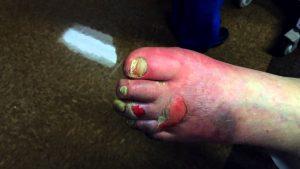 infeccion en el pie que puedes comprar on-line