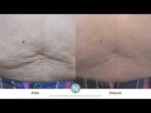 Lista de crema reafirmante para el abdomen para comprar online – Los preferidos