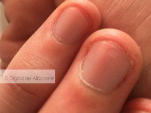 Recopilación de uñas albacete para comprar Online