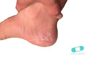 La mejor lista de pies escamosos para comprar online
