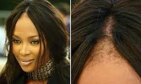 La mejor recopilación de caida de pelo mujeres jovenes para comprar On-line – Los más solicitados