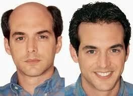 La mejor selección de causas de la caida del pelo en hombres para comprar en Internet