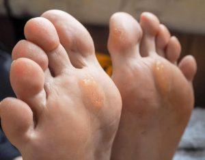 Catálogo para comprar on-line crema para la dureza de los pies – El TOP 30