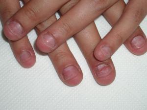 Reviews de cuidado de uñas mordidas para comprar on-line – Los favoritos