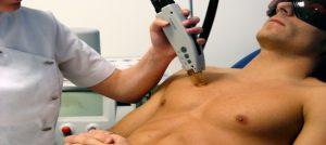 Opiniones de depilarse el pene con crema depilatoria para comprar online – Los 20 más solicitado