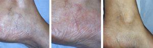Catálogo para comprar en Internet problemas vasculares piernas – Los más vendidos
