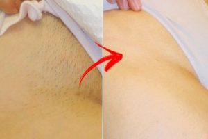 Catálogo de depilacion zona intima mujer para comprar online – Los Treinta favoritos