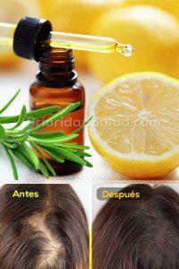 Ya puedes comprar en Internet los remedio caida de pelo – Los 30 favoritos