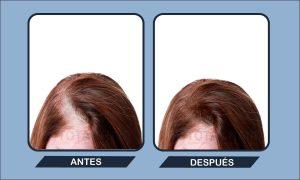 Ya puedes comprar Online los caida de pelo en mujeres tratamiento – Favoritos por los clientes