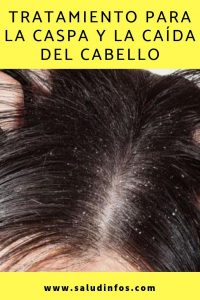 Catálogo de mascarillas para el cabello con caspa para comprar online – Los 30 más solicitado