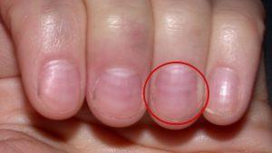 Lista de uñas arrugadas causas para comprar Online – Los preferidos