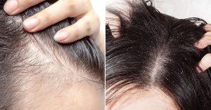 Catálogo de caida de pelo en adolescentes para comprar online
