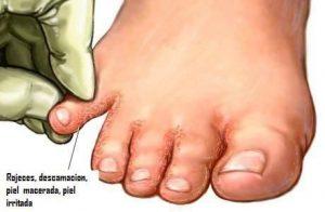 Catálogo para comprar On-line crema para hongos en los dedos de los pies – Los preferidos
