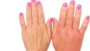 porque se parten las uñas de las manos que puedes comprar en Internet – Los 20 preferidos