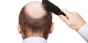 Opiniones de tratamiento para caida de pelo para comprar online