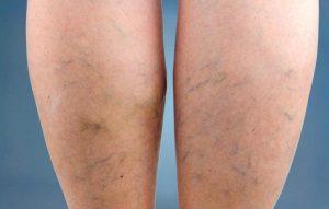 Reviews de piernas con mala circulacion para comprar Online – Los más vendidos
