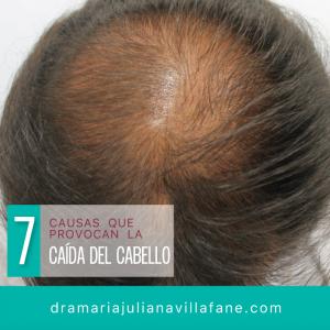 causas de la caida de pelo que puedes comprar on-line