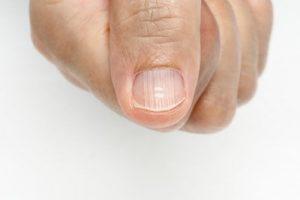 Reviews de estrias en las uñas de los pies para comprar On-line – Los preferidos por los clientes