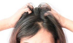 La mejor recopilación de picor en la cabeza y caida de pelo para comprar On-line – El TOP 20