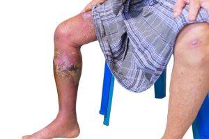 El mejor listado de manchas oscuras en las piernas por mala circulacion para comprar On-line – Los preferidos por los clientes